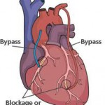 A new study suggests that bypass surgery is a better option for opening blocked cardiac arteries