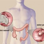 Colorectal Cancer Testing Needs to Increase among over 50
