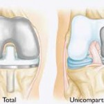 Various Types of Total & Partial Knee Replacement Surgery in India