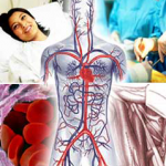 Vascular Surgery at World Class Hospitals in India