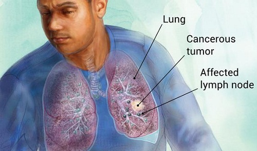 LUNG CANCER – EARLY DETECTION
