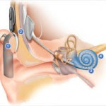 Who is an Eligible Candidate for Cochlear Implant Surgery?