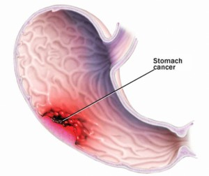 Types of Stomach Cancer – Treatment of Stomach Cancer in India