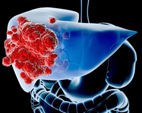 Liver Cancer Treatment