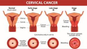 cervical-cancer-stages