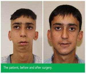 Afghan Man's 'Bird Face Deformity' Successfully Treated By Doctors At Safemedtrip Affiliated  World Class Hospital In India