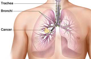 health-lung-cancer