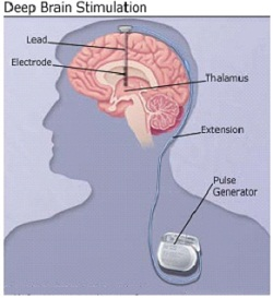 "It's Nearly Possible to ""Shut off"" Parkinson's with a Flick of a Switch – Deep Brain Stimulation."